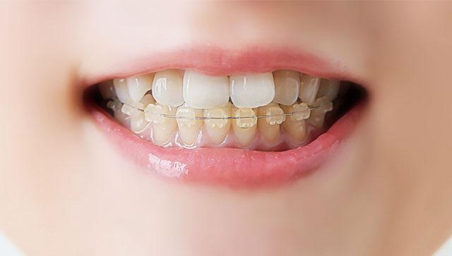 歯並びの悪さが体にもたらす影響