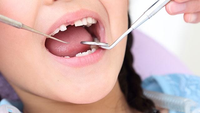 乳歯のむし歯を放置してはいけない理由